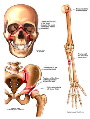 Fractures to the Skull, Shoulder, Forearm and Pelvis