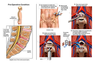L4-5 and L5-S1 Disc Herniations with Two Level Anterior Fusion