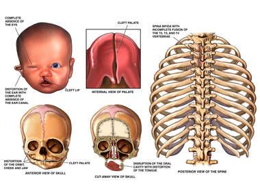 Severe Birth Defects of the Skull