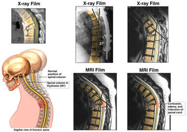 Progression of Kyphosis