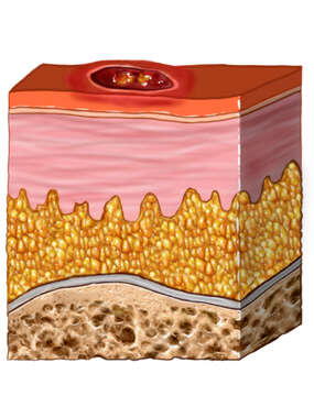 Skin Ulceration - Cross-section