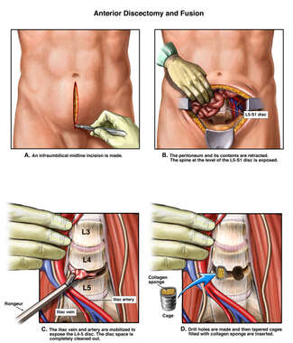 L4-5 Lumbar Fusion Procedure