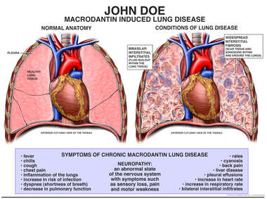 Macrodantin Induced Lung Disease
