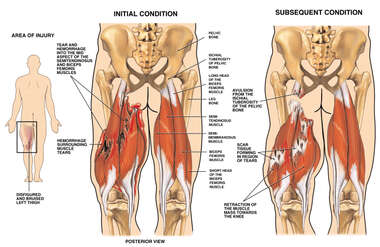 Posterior Male with Post-accident Hamstring Rupture