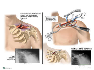 Clavicle Fracture with Surgical Fixation