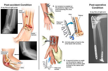 Post-accident Wrist and Elbow Fractures with Surgical Plate and Screw Fixation