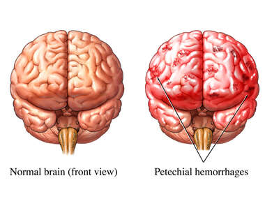Hemorrhagic Stroke