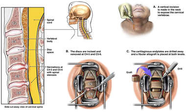 Cervical Spinal Injuries with Double Level Cervical Fusion
