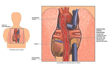 Dissecting Thoracic Aortic Aneurysm
