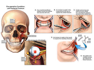 Facial Fractures with Surgical Fixation