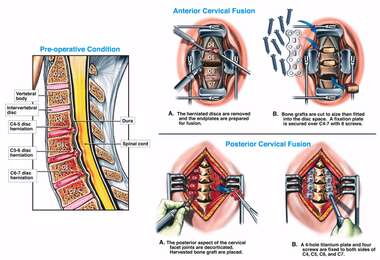 C4-5 Disc Herniation with Complex Multi-level Fusion