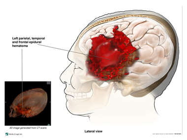 Left parietal, Temporal and Frontal Epidural Hematoma