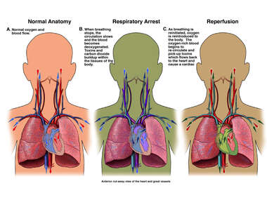 Reperfusion Injury and Respiratory Arrest