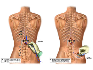 Implantation of Spinal Cord Stimulator