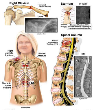 Widespread Injuries- Clavicle, Sternum, and Spinal Column