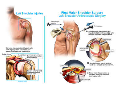 Multiple Shoulder Surgeries