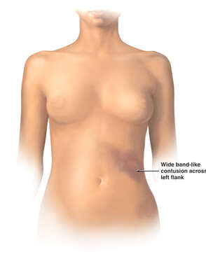 Anterior Female Torso with Post-accident Contusion of the Left Flank