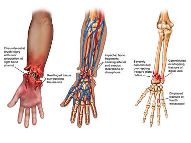 Severe Crush Injuries of the Right Upper Extremity