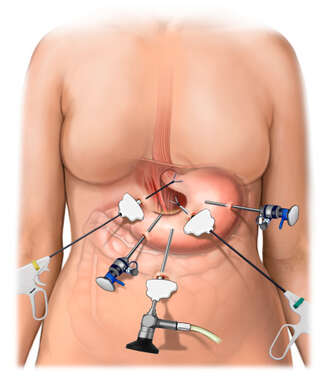 Instrumentation for Laparoscopic Fundoplication Procedure