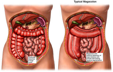 Bowel Distention v. Megacolon