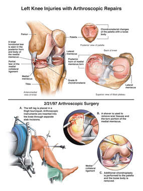 Arthroscopic Knee Surgery: Meniscal Repair