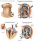 Proposed C5-6 Anterior Cervical Discectomy and Fusion