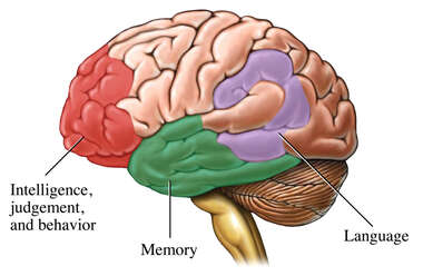 Areas of the Brain Affected by Alzheimer's Disease