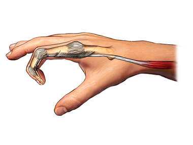 Flexor Tendon of Finger