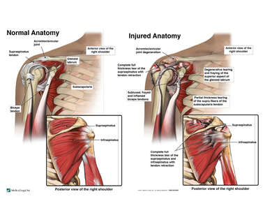Severe Right Shoulder Injuries with Arthroscopic Repairs