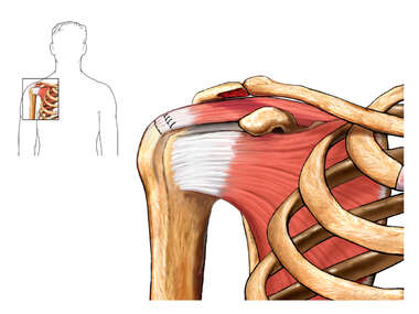 Rotator Cuff Repair - Post-operative