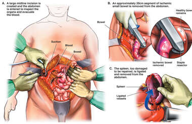 Surgical Laparotomy with Small Bowel Resection and Splenectomy