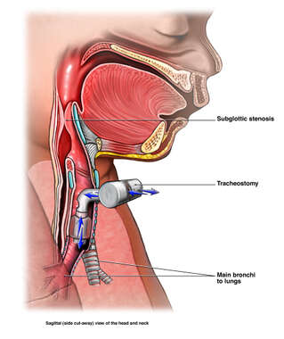 Placement of Tracheostomy in Child with Subglottal Stenosis