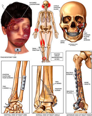 Surgical Repairs to the Skull, Forearm, Thigh and Ankle