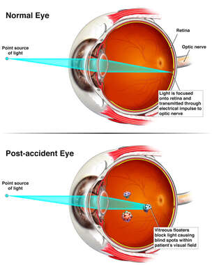 Post Accident Eye Injury