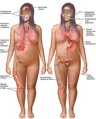 Side by Side Female Figures Comparing Post-accident Injuries and Medical Treatments
