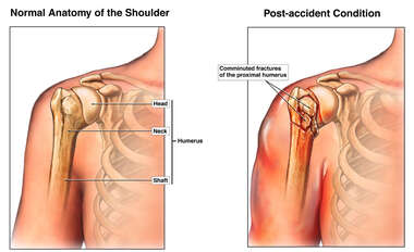 Right Shoulder Fracture