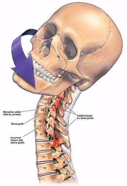 Limited Cervical Vertebrae Rotation Due to Spinal Fusion