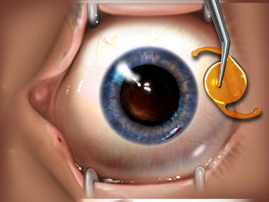 Intraocular Lens Placement Surgery