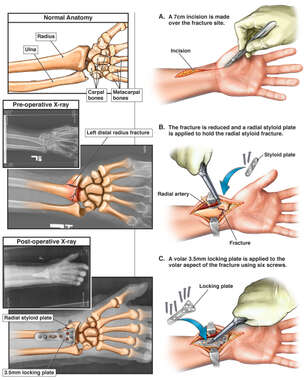 Left Distal Radius Fracture with Surgical Fixation