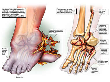 Left Foot Injuries