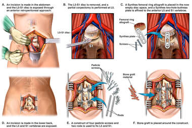 Anterior and Posterior Lumbar Discectomy and Fusion Procedure