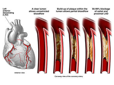 Anatomy of the Heart with Blockage of Coronary Artery