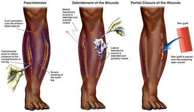 Left Leg Fasciotomies, Debridement and Partial Closing of Wounds