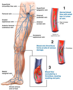 Deep Venous (Vein) Thrombus (DVT) of the Right Leg