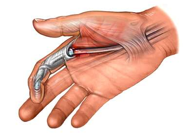 Irritation Flexor Tendon of Finger