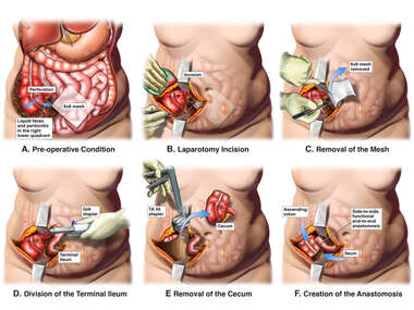 Perforation of the Cecum with Subtotal Right Colectomy Surgery