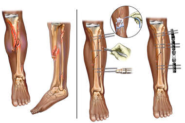 Left Tibia Fracture with Surgical Fixation
