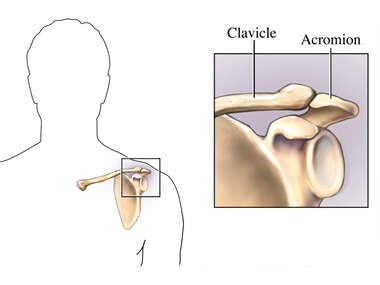 Clavicle-Acromion Joint
