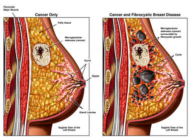 Breast Cancer With and Without the Presence of Fibrocystic Breast Disease