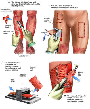Debridement and Skin Grafting Procedure